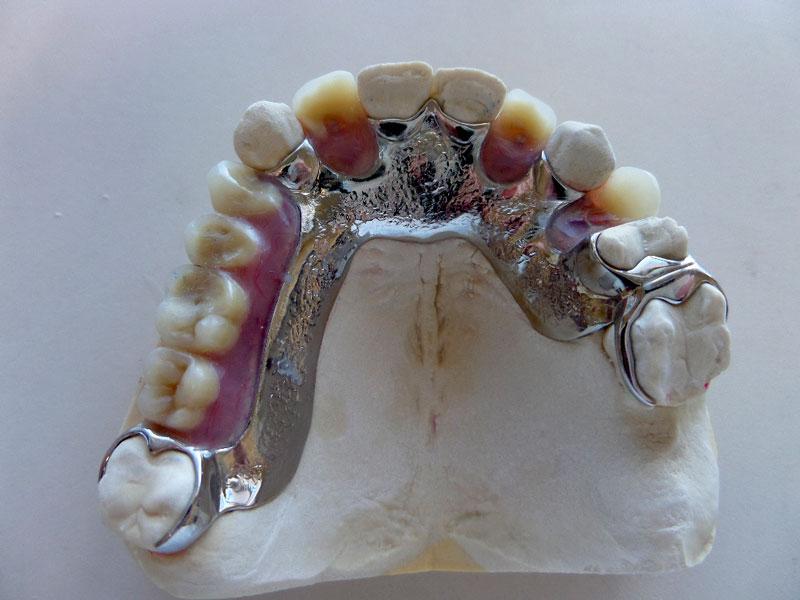 Chrome Partial Denture